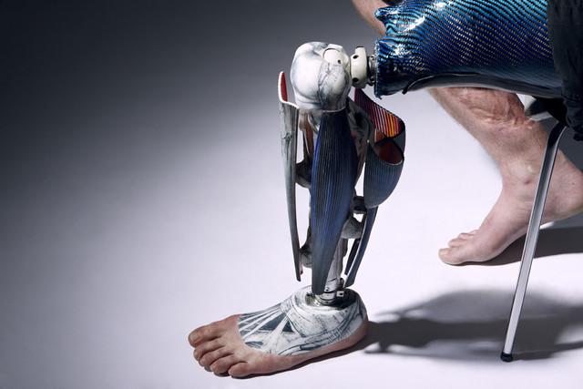 The Alternative Limb Project