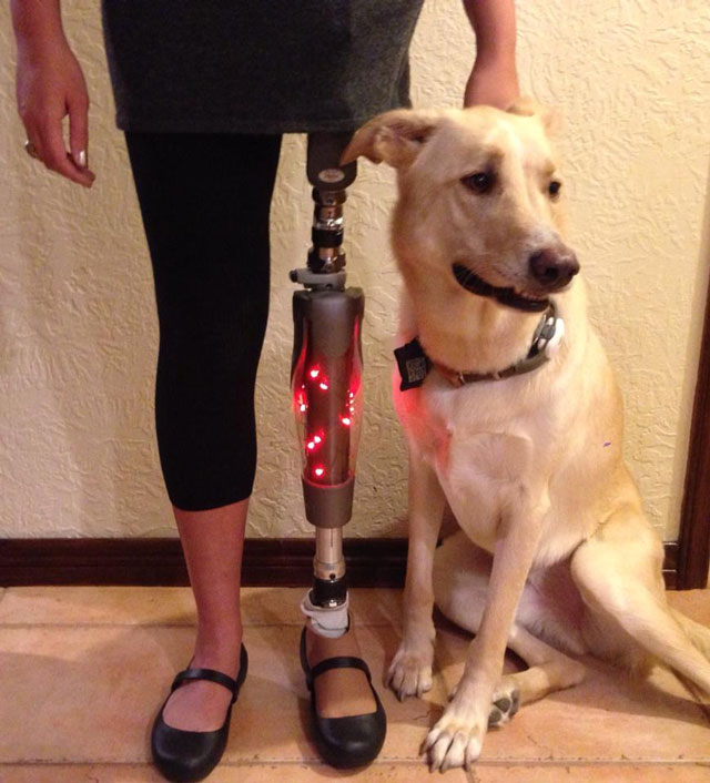 woman decorates her prosthetic leg with christmas lights for the holidays