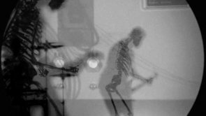 Anormal by Pato Fu, A Music Video With X-Rays & CG Skeletons