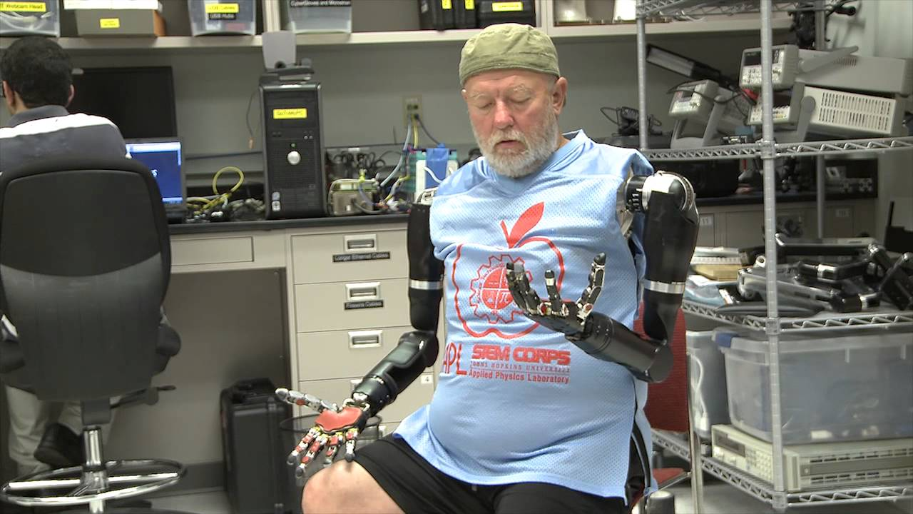Man Without Arms Operates the First Set of Modular Prosthetic Limbs That Move Independently With His Thoughts