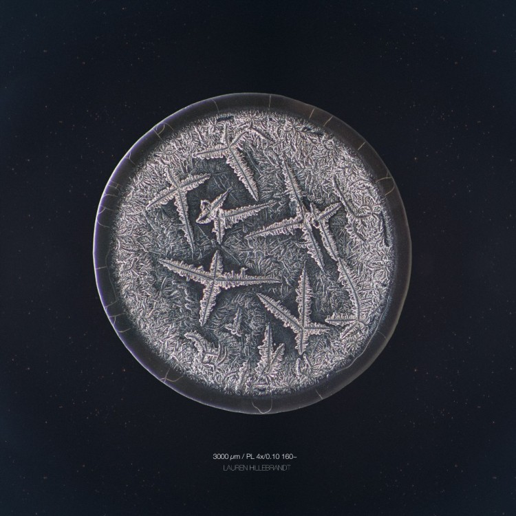 microscopic tears 1