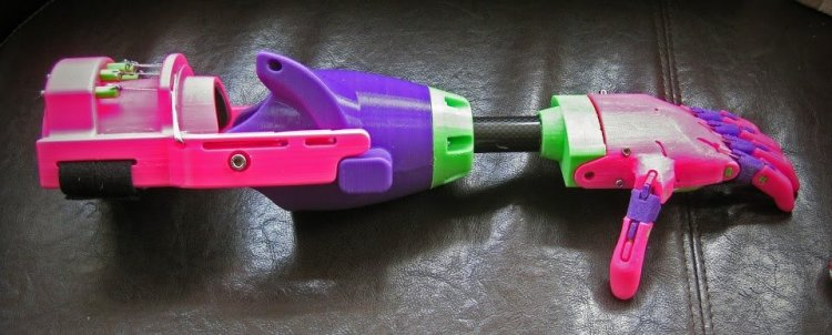 Isabella 3D Printed Arm 1