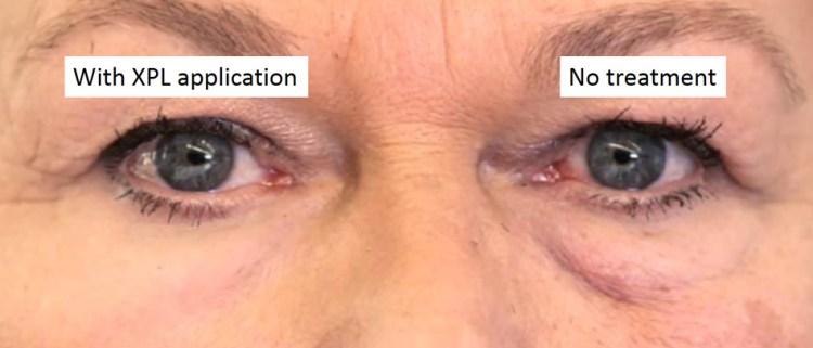 MIT Second Skin Under Eyes