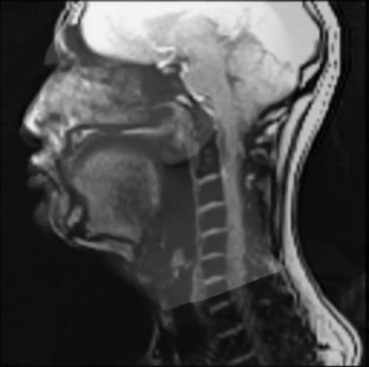 An MRI Reveals How the Vocal Tract Changes When the Same Song Is Sung Four Different Ways