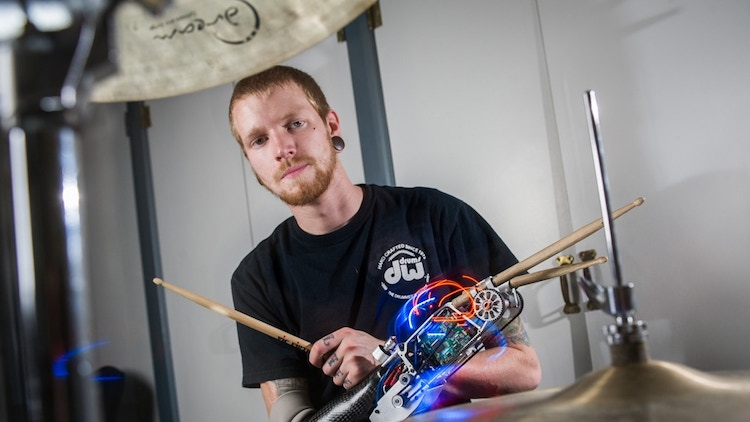The Cyborg Drummer Launches a Kickstarter Project to Create a Portable Version of His Prosthetic Arm