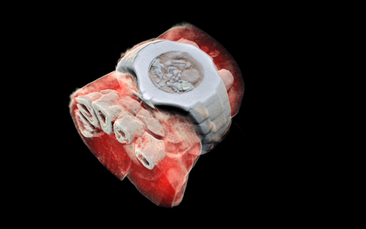 The World's First Human Body Scanner That Can Produce Highly Detailed Full Color 3D X-Ray Images