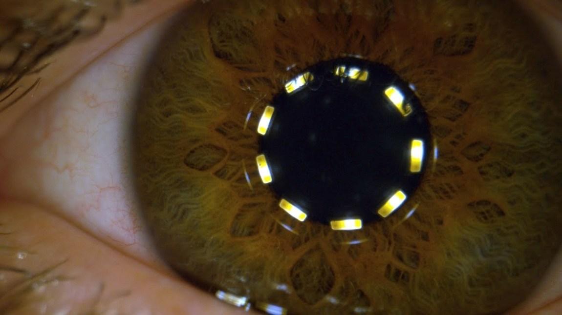 Dan Gruchy Eye Constricting and Dilating Slo Mo