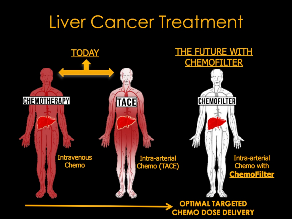 Liver Cancer Chemofilter