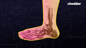 The Human Foot Is a Design Disaster
