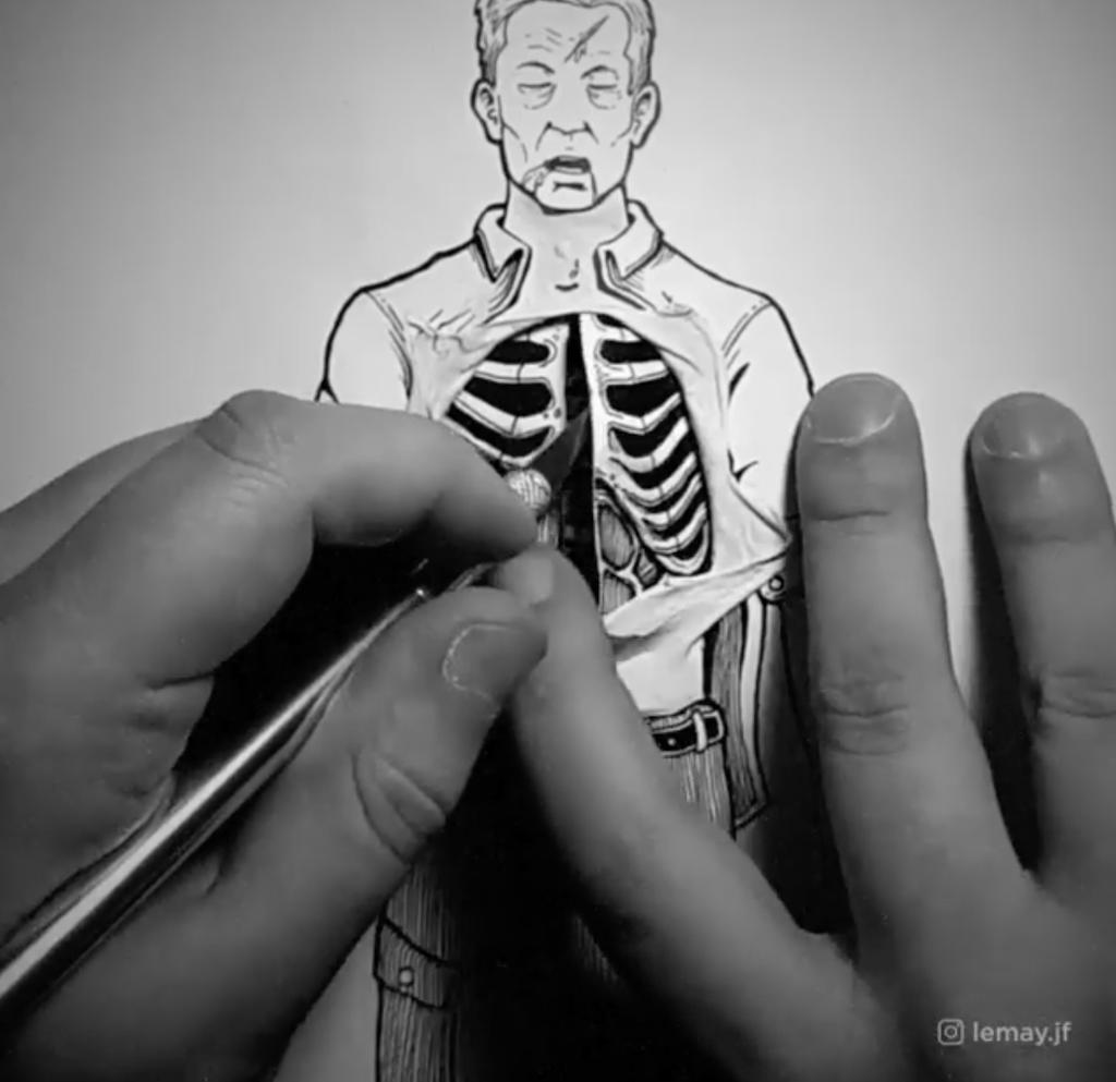 Life Saving Surgery on Illustration