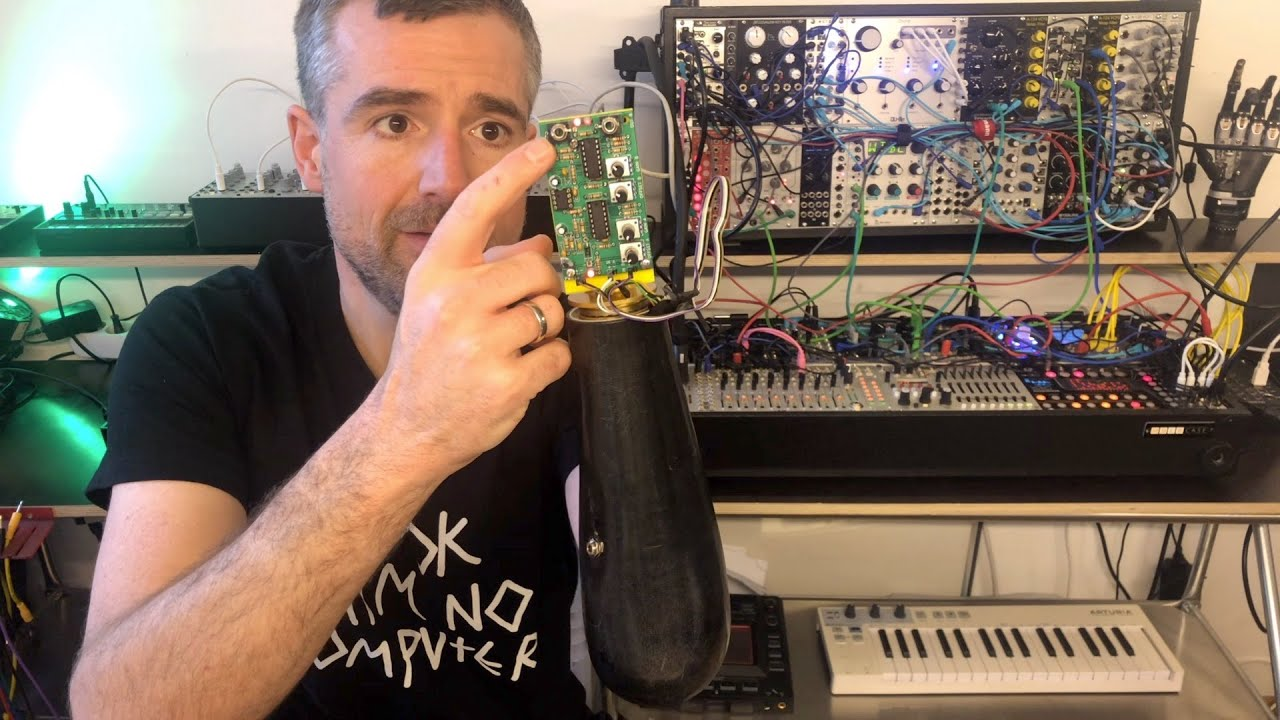 Professor Hacks His Arm Prosthesis to Plug Into a Synthesizer to Make Music Using His Thoughts - laughing squid