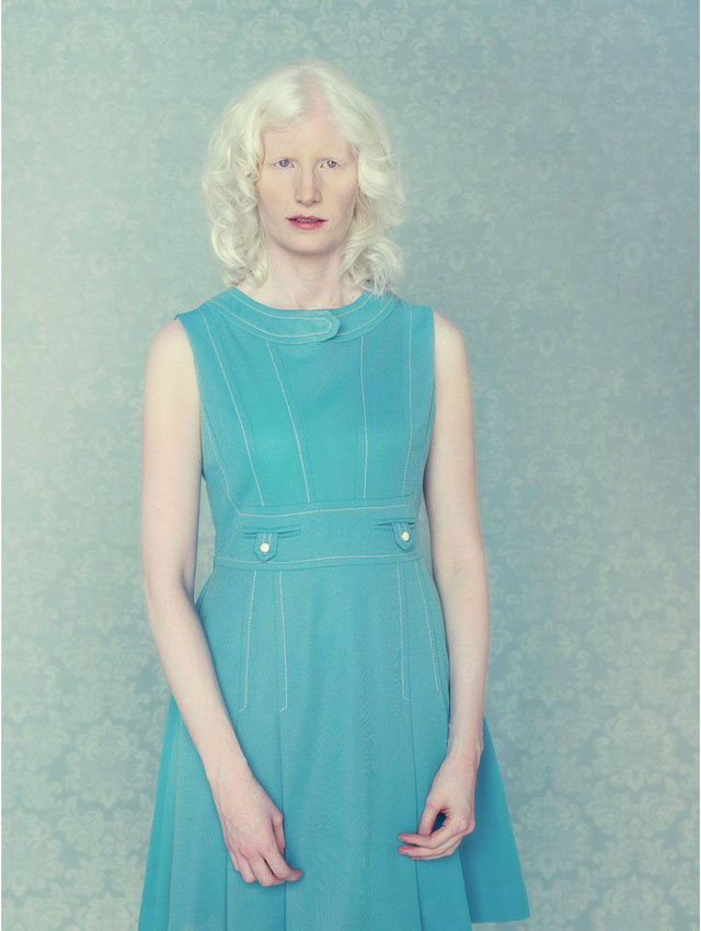the genetic defect albinism essay Albinism is a congenital disorder where there is a complete or partial absence of pigment in the skin, hair, and eyes because of the absence or defect in the enzyme that produces melanin melanin is responsible for pigment in plants, animals, and protists.