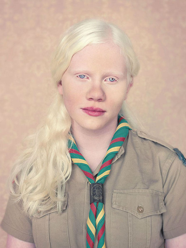 Albinos, A Beautiful Photo Essay of People With Albinism