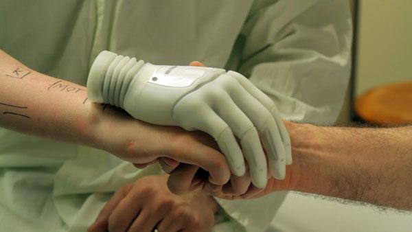 Bionic Reconstruction