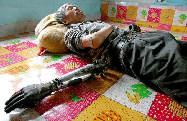 Chinese man builds his own prosthetic arms
